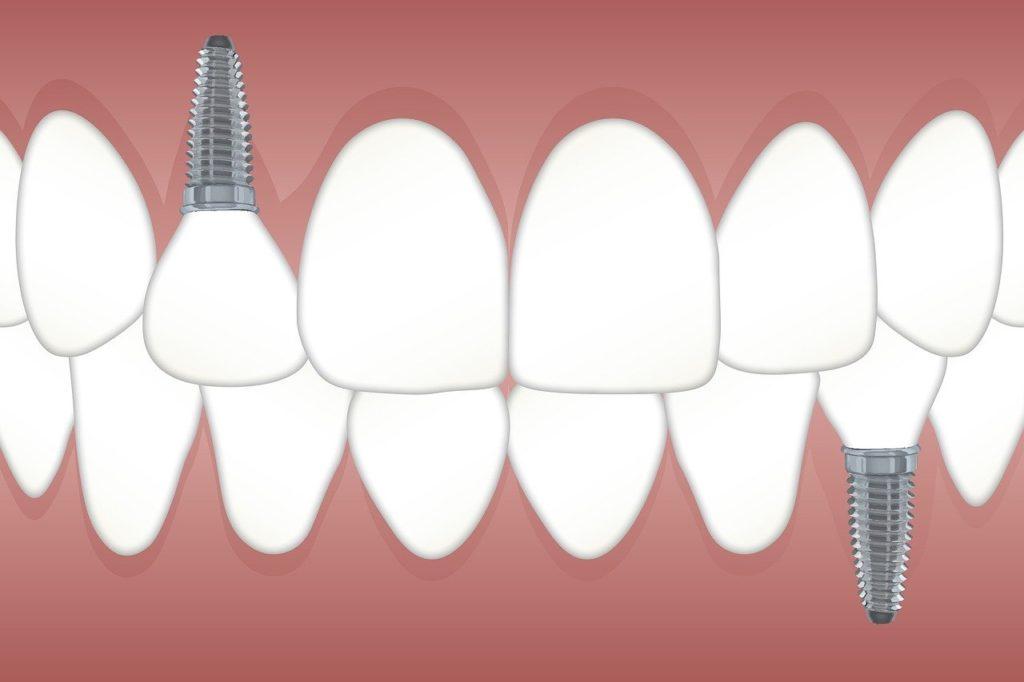 teeth, implant, orthodontics